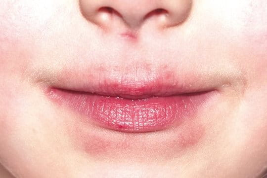 Lips before treatment with Eucerin Acute Lip Balm