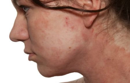Dermatitis | DermNet New Zealand