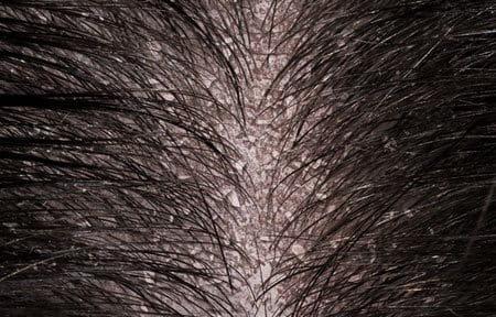 trockene kopfhaut fettige haare