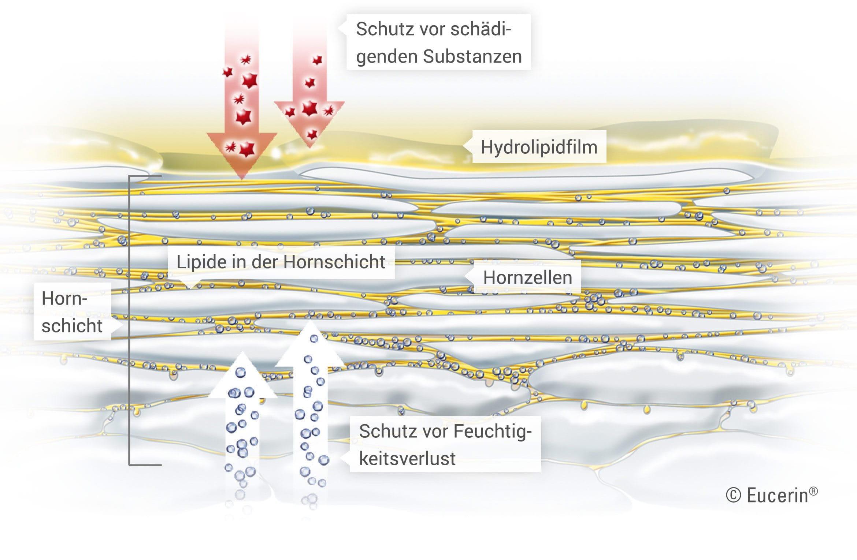 keratinisierung