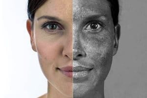Photoaging: UV-bedingte Hautalterung