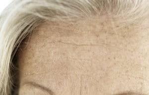 Altersflecken Entstehung Und Behandlung Eucerin