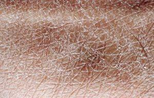 Extrem Trockene Haut Am Körper Eucerin