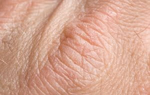 Trockene Zu Ekzemen Neigende Hände Was Hilft Pflege Eucerin